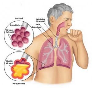akut-solunum-yolu-enfeksiyonları-nedir-300x289